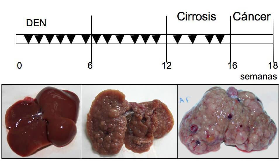 Cirrosis y cáncer de hígado