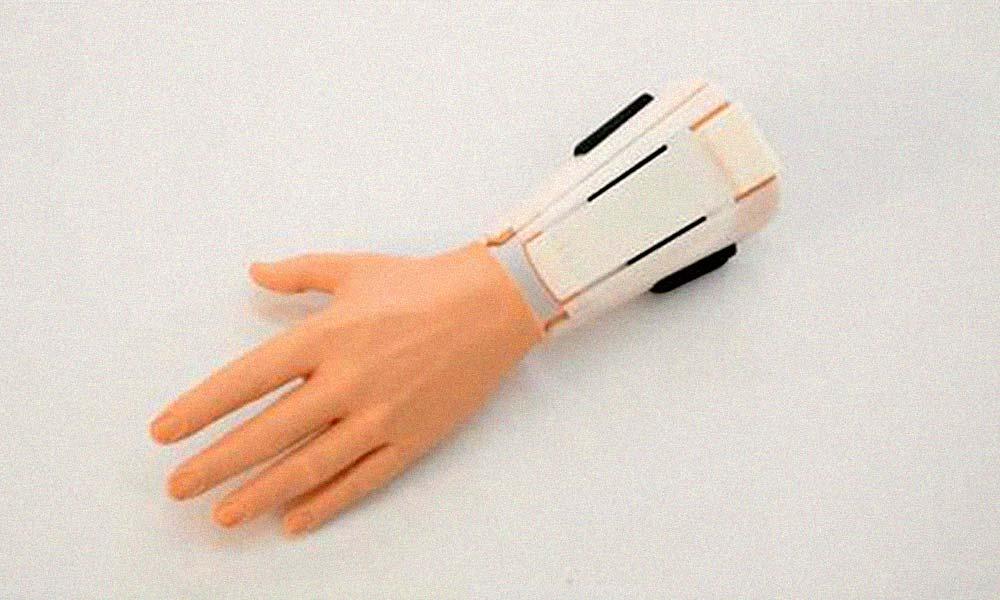 P01 Prótesis mecánica para mano impresa en 3D
